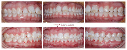 Class II treatment, non extraction, Herbst, Mara, chin improvement, Orthodontics, orthodontists, Clear, Invisible, Braces, Invisalign, 
